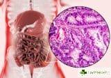 Високодиференциран адекарцином на дебелото черво – какво е това