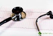 Микроинфаркт - какви са най-често причините