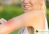 Ухапване от зла муха – какво да направим веднага, за да не стане по-лошо