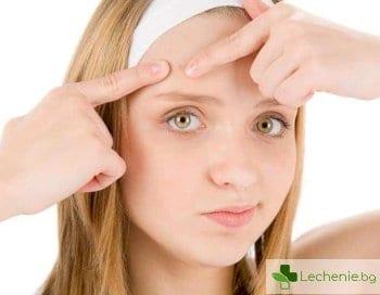 5 природни средства за лечение на акне, които наистина действат