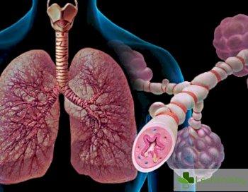 Как да преборим астмата - няколко бързи съвета