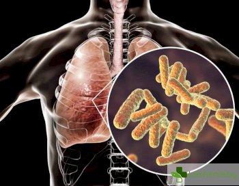 Бактериите успяват да издигнат защитна стена пред антибиотиците