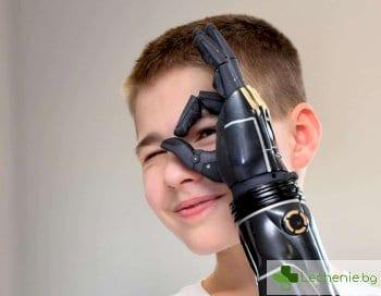 Разработена е най-съвършената бионична протеза на ръка