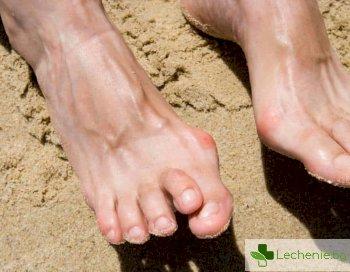 Хиперкератоза на стъпалата