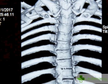 Изгарянето на нерви може да е целебно при болки в кръста