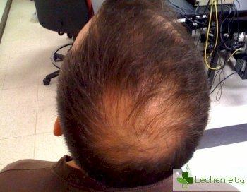 Как да намалим косопада в климактериума