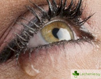 5 естествени начина за лечение на блефарит