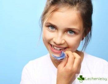 Алайнери или брекети за деца - какво ще реши зъболекарят