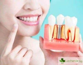 Имплантация на зъби при диабет - особености и кога е възможна