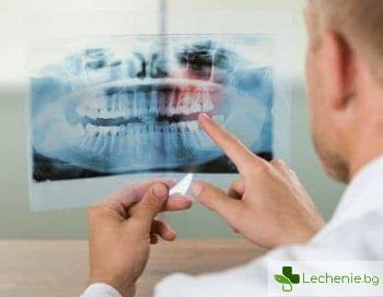 Спасение на всяка цена - хемисекция на зъб