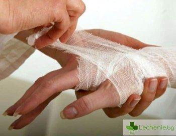 5 начина да намалите болката при изгаряне