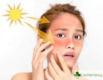 Как да се грижим за кожата след морето