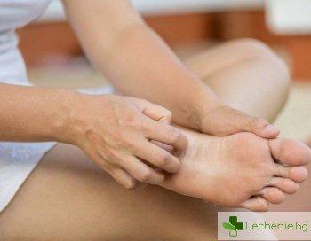 Мицетом на стъпалото - причини и симптоми на инфекцията