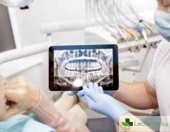 Възстановяване на кост при парадонтоза и имплантация