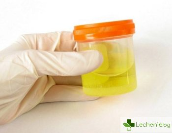 Какво означава бялата в утайка в урината