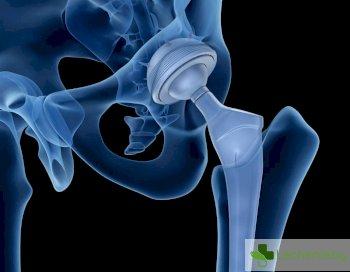 Учени в БАН с разработка на нови материали за ортопедични импланти