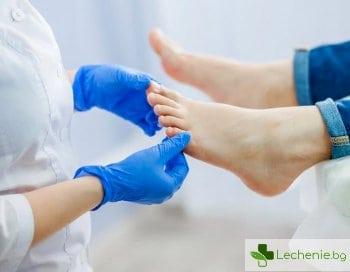 Отлепване на нокътя - какви са предразполагащите фактори