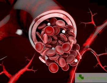 Хидрогел - нов помощник при лечението на труднозаздравяващи рани