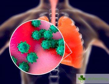Нова епидемия пневмония с неизвестен причинител в Казахстан