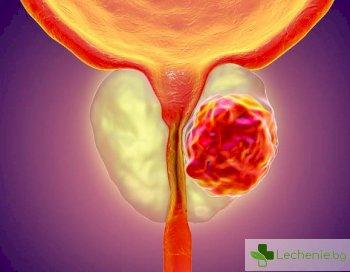 Лечение на рак на простатата може да ни докара до старческо слабоумие