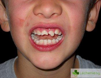 9 лоши навика, които развалят зъбите ви