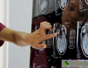 Рентген и томография при главоболие - защо са необходими