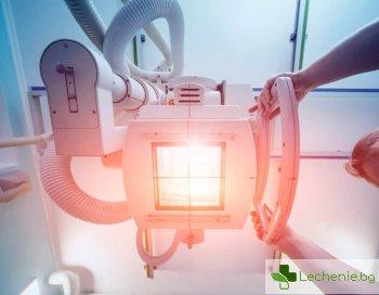 Тежък COVID-19 може да се лекува ефективно с рентген