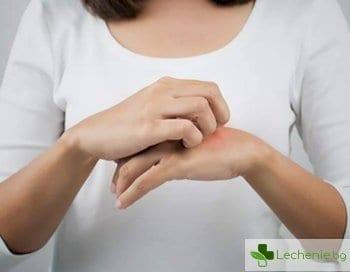 Сърбеж на дланите