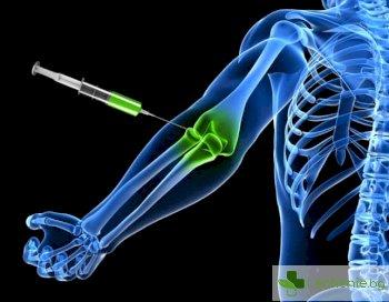 Счупени кости вече се възстановяват с инжекции