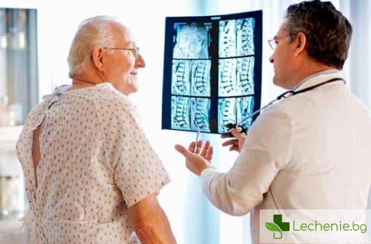 Фрактури при остеопороза – кости на дланите, фрактура на бедрата
