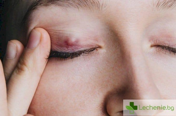 Как да различаваме халацион и ечемик на окото