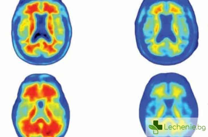 Ново лекарство премахва токсичните протеини от мозъка на болни от Алцхаймер