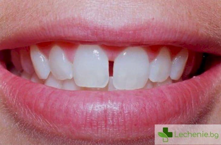 Диастема - разстояние между предните зъби