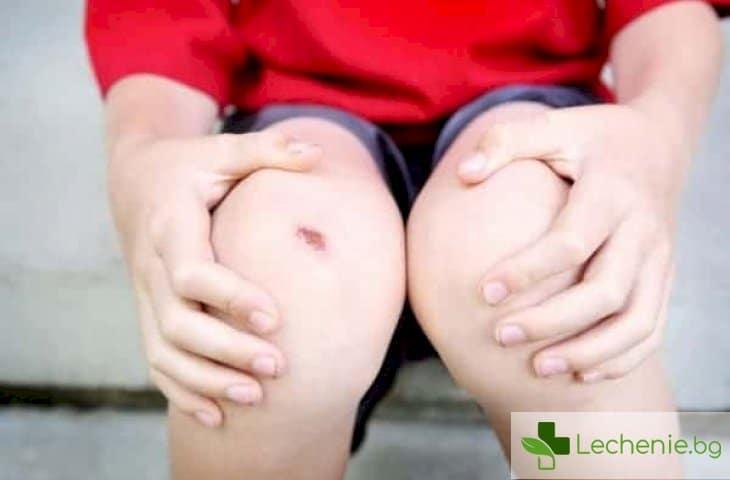 Опасни драскотини - как да предотвратите превръщането им в гнойни рани