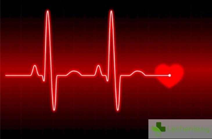 Сърдечни линии - какво е важно да знаете за електрокардиограмата / ЕКГ /