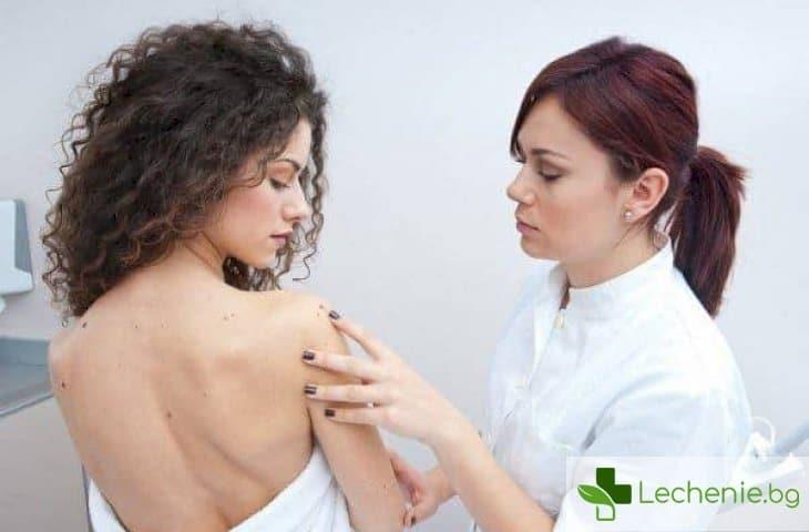 Фибром на кожата, матката и на белите дробове - откъде се появява