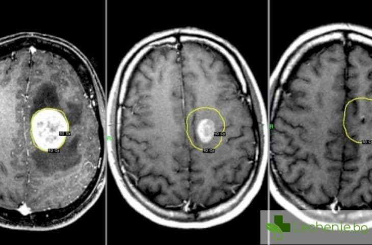 Рак на главния мозък - как да не пропуснете първите симптоми