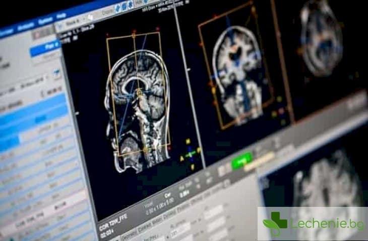 Хронична исхемия на главния мозък - причини и симптоми