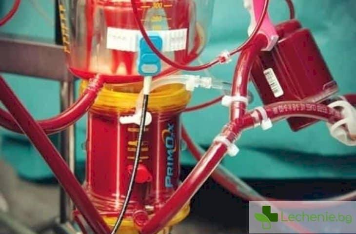 Хемоделуция и смяна на кръвта - кога се налага
