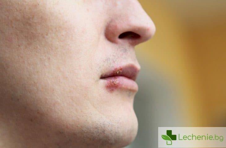 Херпес вирусът до 2 години ще направи възможно пълното излекуване от агресивен рак на кожата