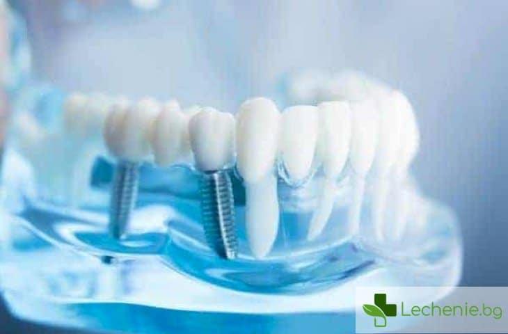 Увреждане на нерв при поставяне на зъбен имплант - симптоми и лечение