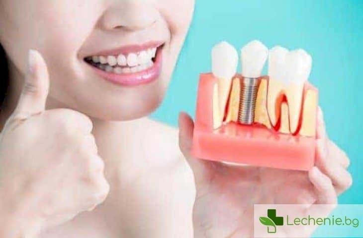 Грижа за зъбите след поставяне на импланти - основни правила