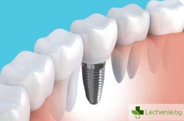 Антидепресантите увеличават риска от отхвърляне на зъбните импланти