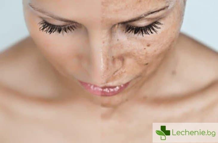 Как да изравним тена на кожата - топ 5 най-ефективни разкрасителни процедури