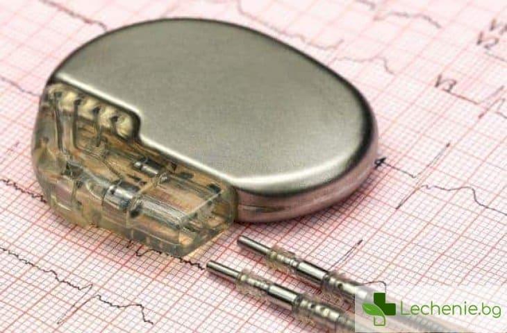 Кардиостимулатор при аритмия - корекция на слаб пулс