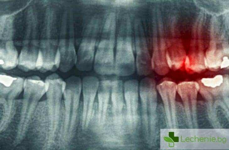 Зъбна киста - мълчаливата опасност