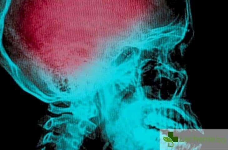 Прекарали тежък инсулт прохождат отново след инжекция стволови клетки