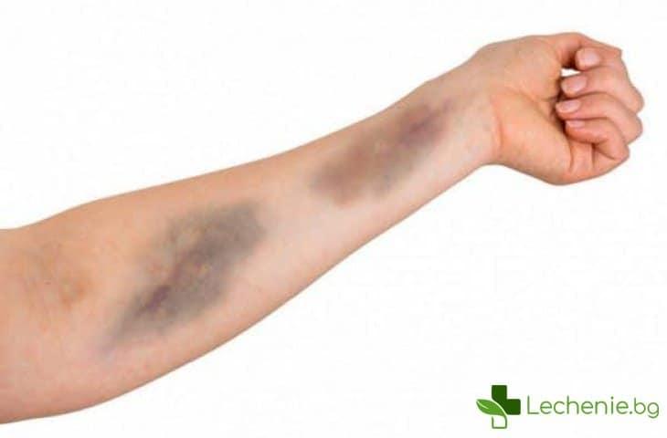 Болест на Шамберг - увреждане на кожата, ролята на имунитета