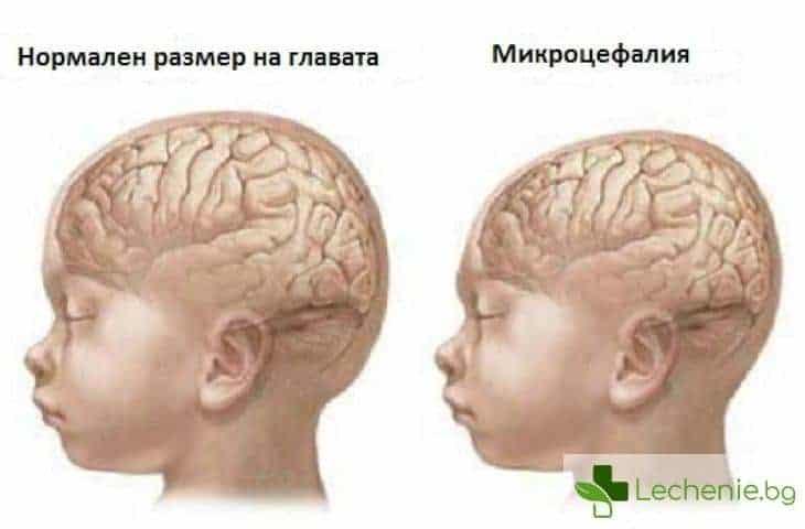 Микроцефалия - симптоми и лечение