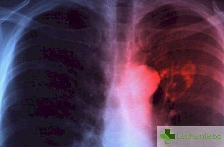 Милиарна туберкулоза